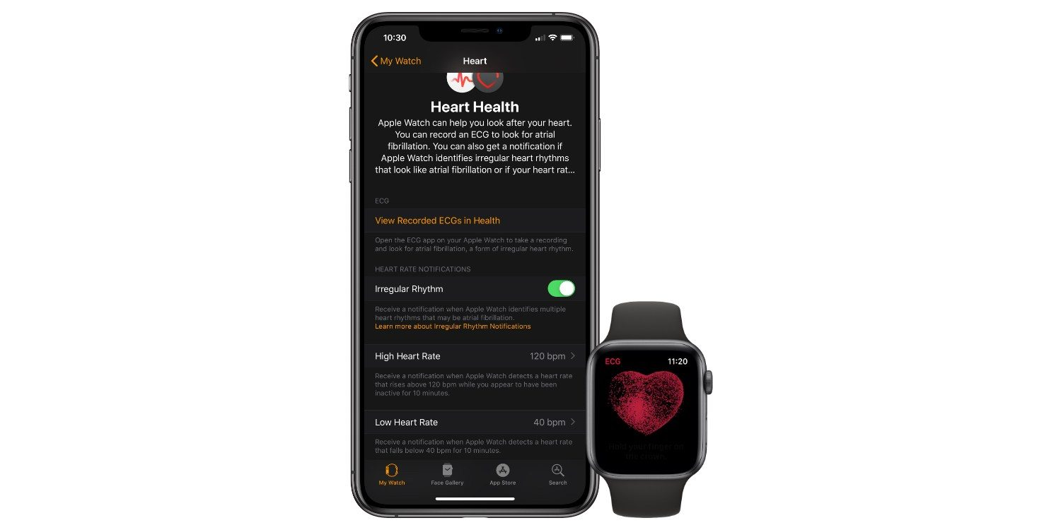Sforum - The latest information on heart-ecg technology ECG ECG measuring function of Apple Watch just saved a person in England
