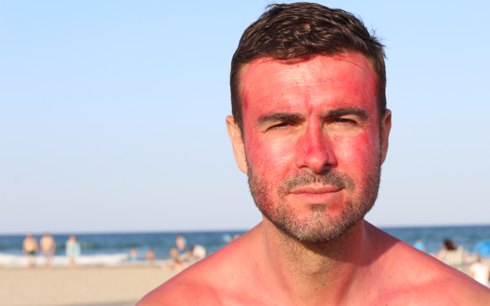 an with a severely sunburned face