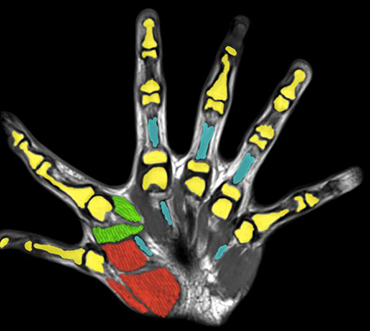 Scientists have found that having six fingers can bring many benefits in life - Photo 2.