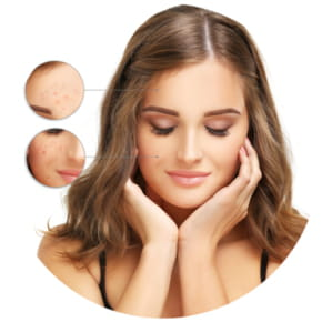 Blemishes on the face: types and treatments
