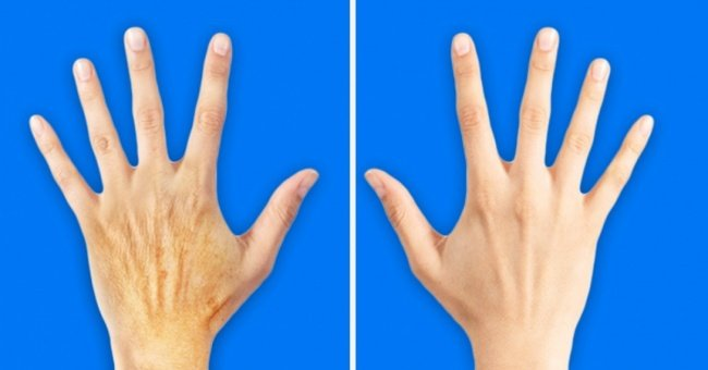 5 bad habits that make your hands 10 years older than your face