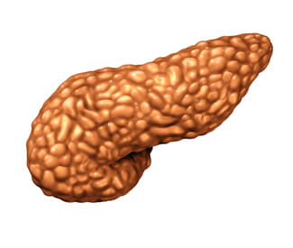 Pancreatic cancer: symptoms and treatment