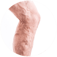 Pelvic varices: what it is, symptoms and treatment